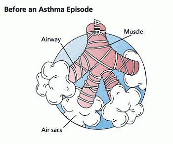 Asthma: A Case Study